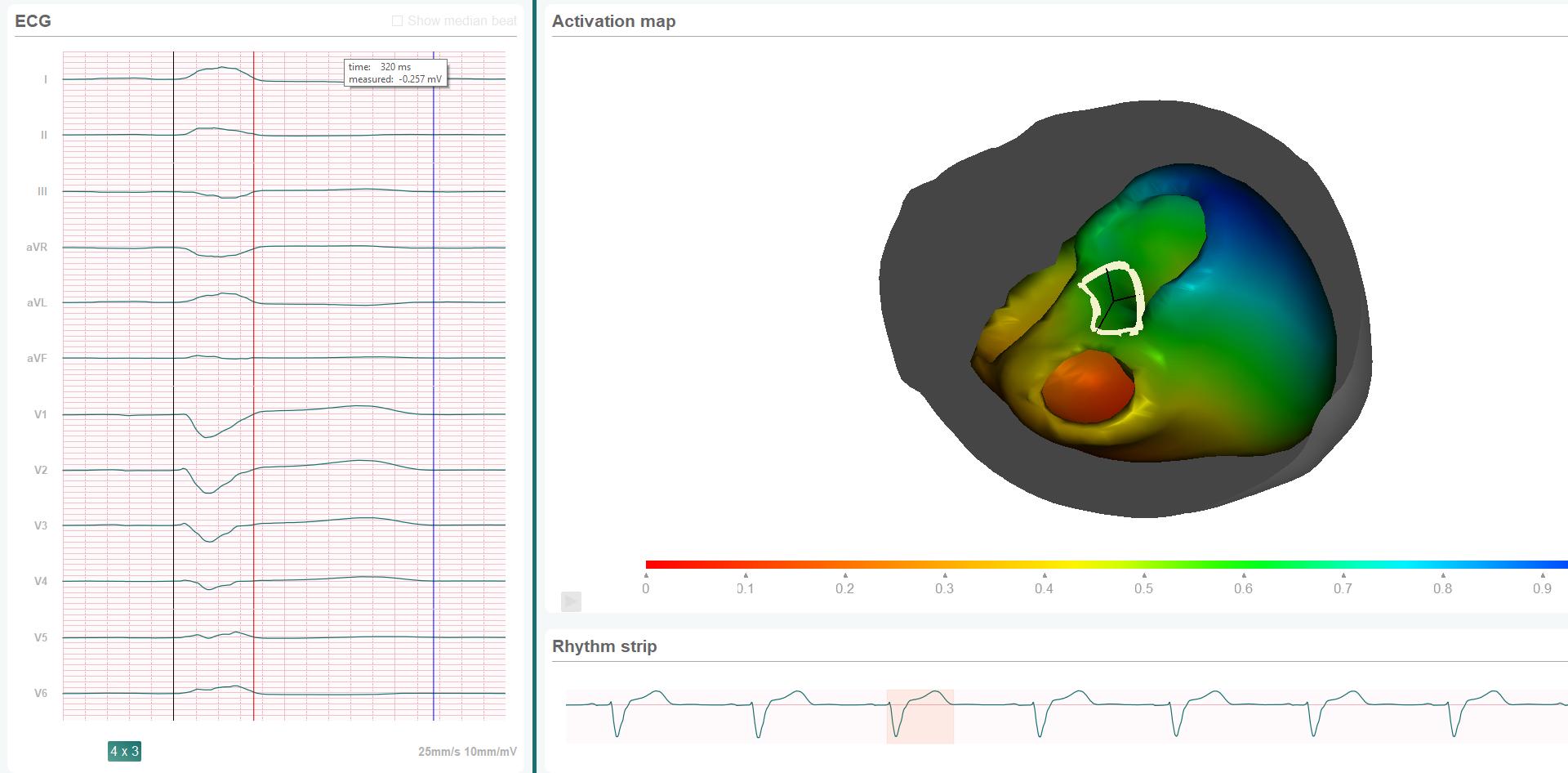 Mapper heart model